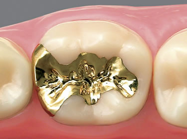 藤沢市辻堂の歯医者・歯科の阿部歯科CTクリニックのゴールドインレー