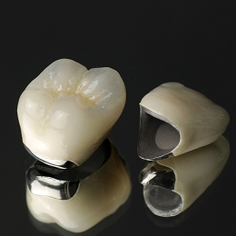 藤沢市辻堂の歯医者・歯科の阿部歯科CTクリニックのメタルボンド